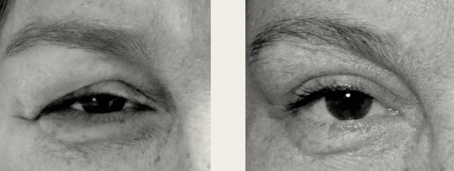 operation af øjenlåg gratis